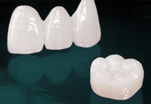 Dental bridges Milton Keynes