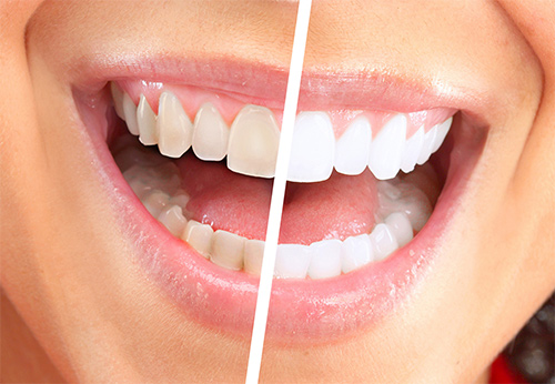 Teeth whitening Milton Keynes