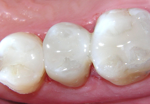 White fillings Milton Keynes